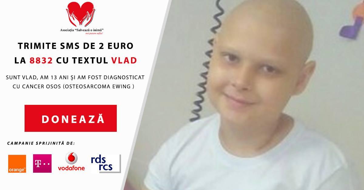 Vlad Ceban SMS 8832